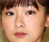 加護亜依は整形で顔変わったし劣化した?現在の痩せた姿と昔の太ってた頃で画像比較!