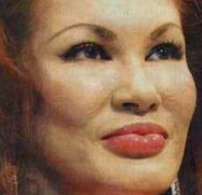 叶姉妹は整形前から顔や体全身が変わりすぎ?すっぴんや昔の若い頃の写真と画像比較!