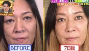 ジャガー横田が整形で顔変わった若返り手術の結果がすごい?昔の若い頃は超美人だったかも調査!