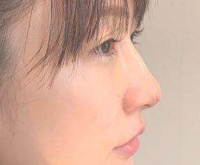 あいのり桃は整形で目と鼻をイジって顔変わった?すっぴん素顔の加工なし半顔メイクは実物と違うか画像比較!