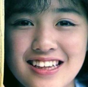 菊池桃子は整形で顔が変わったしむくみもある?昔の若い頃やすっぴん素顔の画像と比較!