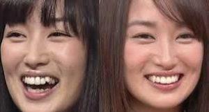 高梨臨は整形で顔変わったから昔より綺麗?歯を矯正したかすっぴんは別人なのかも調査!