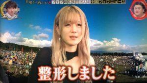 フェフ姉の友達・多田さんの整形前と後を画像で比較!鼻をイジって顔変わったか過去の画像と比較!