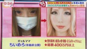 ちいめろは整形前から鼻をイジって顔変わった?すっぴんや昔から別人に変化したか画像で比較!