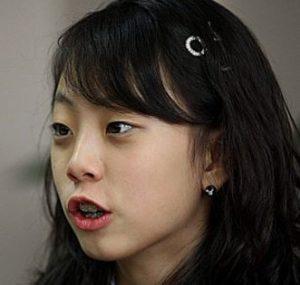 浅田真央は整形で顔変わったし可愛くなった?昔の若い頃と現在を画像で比較!