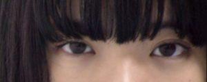 あいみょんは整形で目を大きくして顔が変わった?昔の子供のころや高校時代と画像を比較!